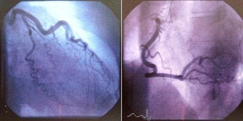 冠動脈造影検査031312.jpg