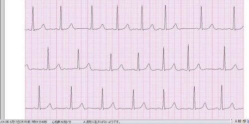 呼吸性洞不整脈061710.JPG