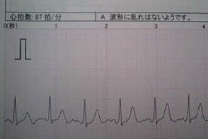 手術前.jpg