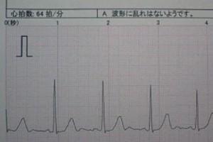 手術当日の朝.jpg