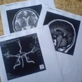 MRI_MRA脳020209.JPG