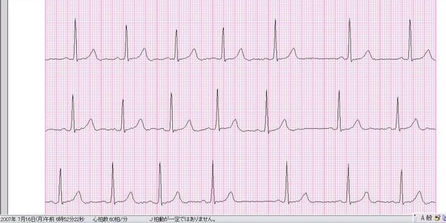 呼吸性洞不整脈071607.JPG